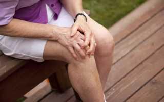 Боремся с артритом коленного сустава с помощью спорта: три эффективных метода