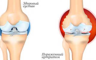 Полезные продукты для суставов: как избежать ревматизма и артрита