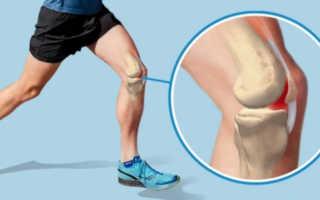 Действительно ли бег вредит коленям